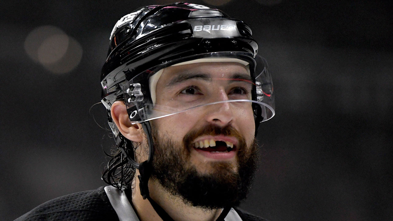 Kings' Doughty meets hockey doppelgänger, missing teeth and all